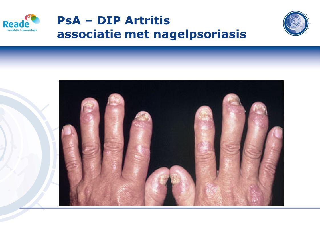 PsA – DIP Artritis associatie met nagelpsoriasis