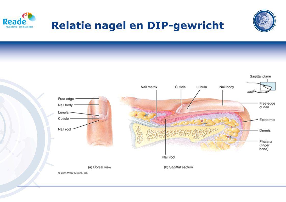 Relatie nagel en DIP-gewricht