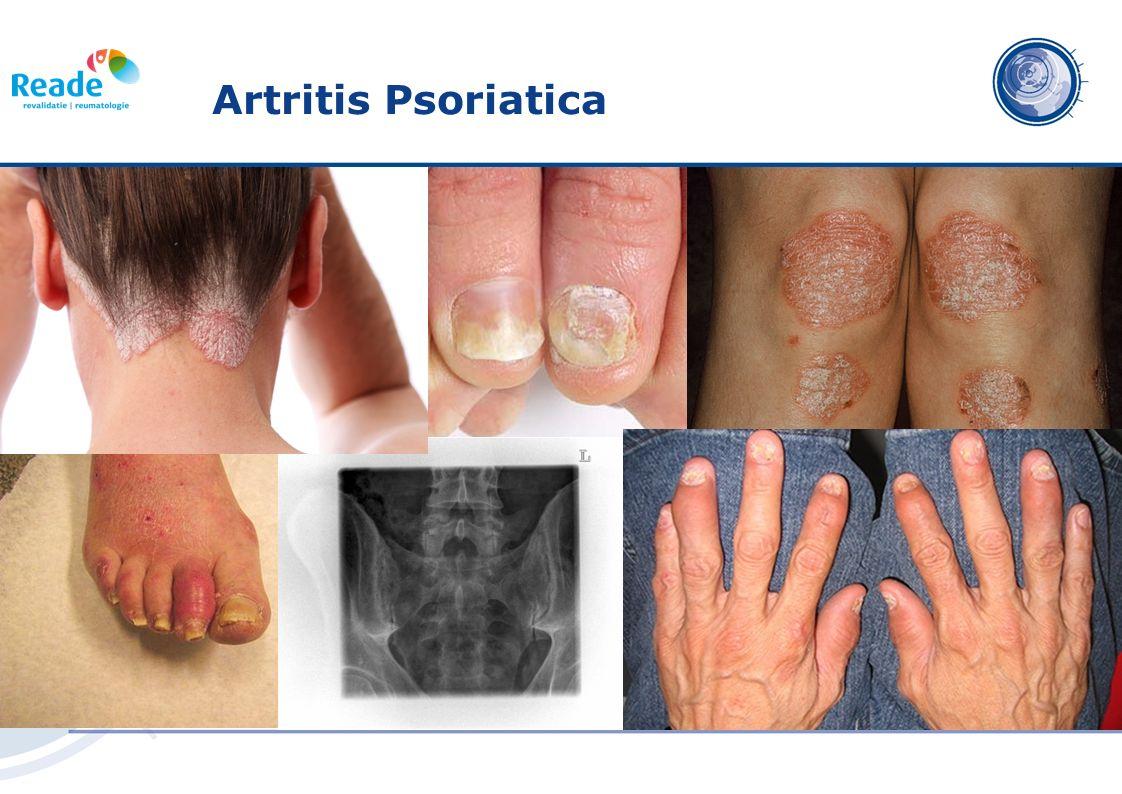 Artritis psoriatica (PsA) is een Spondyloartritis Baeten DL