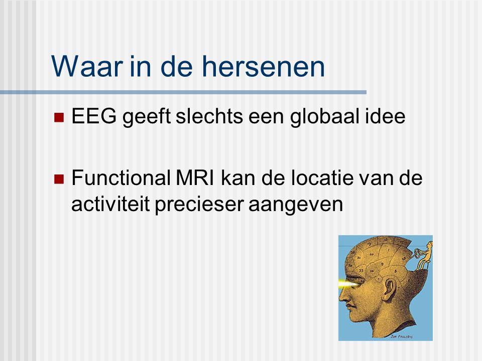 Waar in de hersenen EEG geeft slechts een globaal idee Functional MRI kan de locatie van de activiteit precieser aangeven