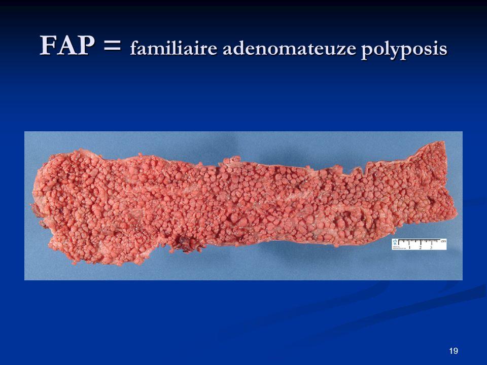 19 FAP = familiaire adenomateuze polyposis
