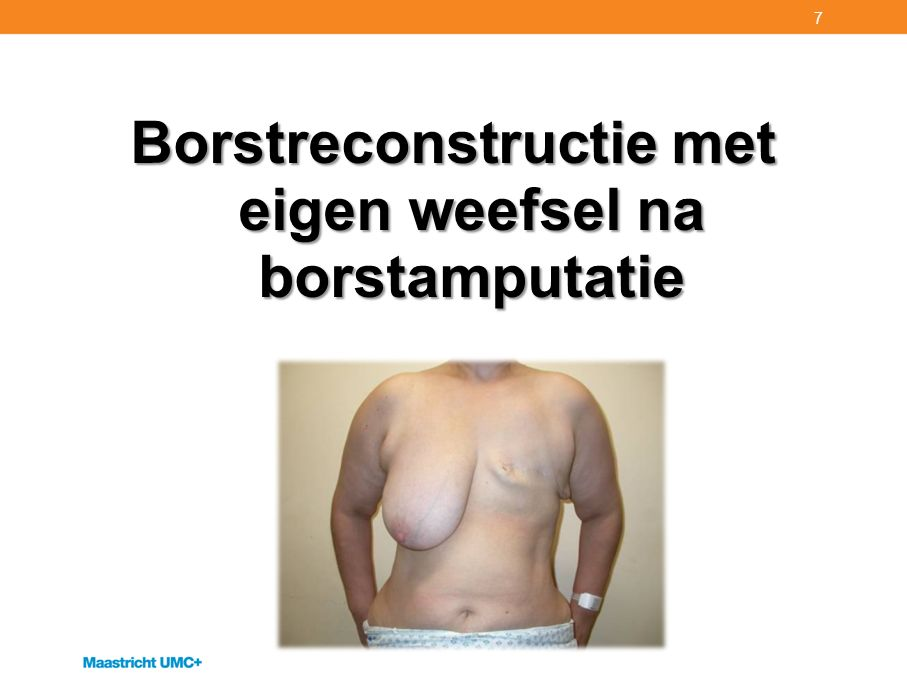 Borstreconstructie met eigen weefsel na borstamputatie 7
