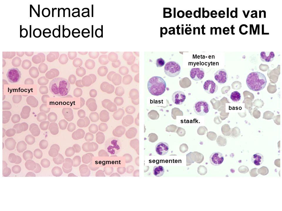 Normaal bloedbeeld Bloedbeeld van patiënt met CML segment monocyt lymfocyt segmenten staafk. Meta- en myelocyten baso blast