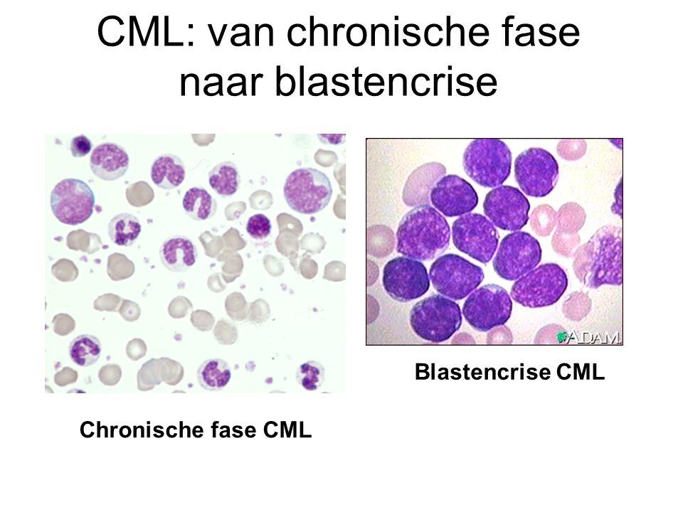 CML: van chronische fase naar blastencrise Chronische fase CML Blastencrise CML