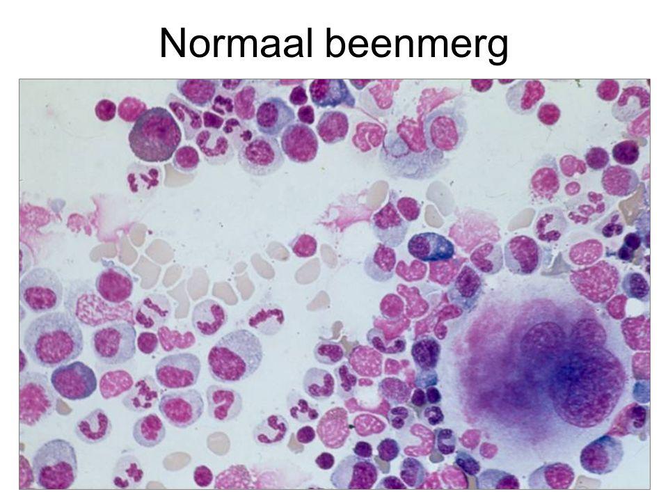 Acute leukemie Alle normale beenmergelementen zijn vervangen door leukemiecellen