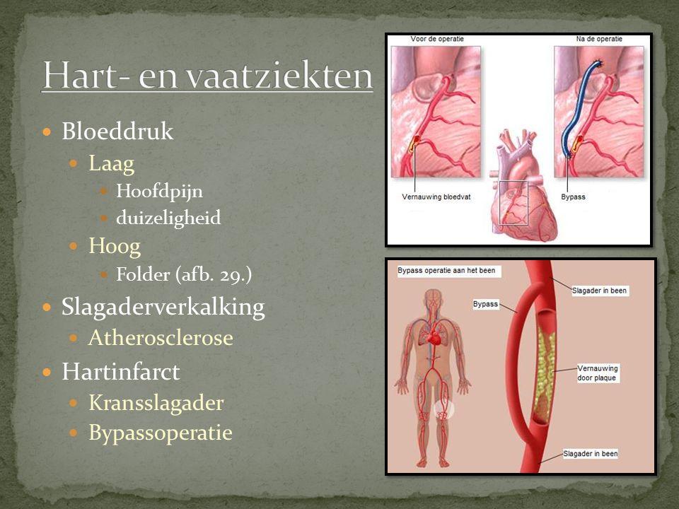 Bloeddruk Laag Hoofdpijn duizeligheid Hoog Folder (afb. 29.) Slagaderverkalking Atherosclerose Hartinfarct Kransslagader Bypassoperatie
