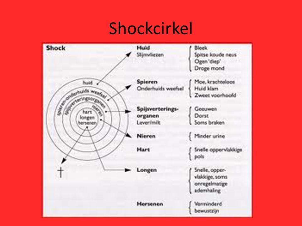 Shockcirkel