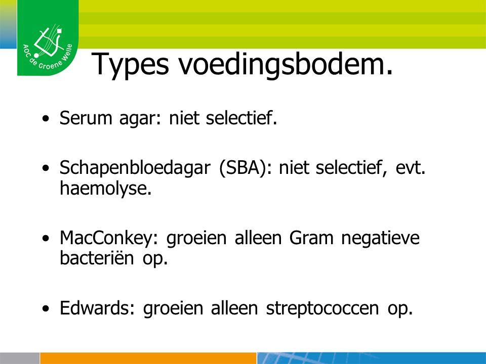 Types voedingsbodem. Serum agar: niet selectief. Schapenbloedagar (SBA): niet selectief, evt. haemolyse. MacConkey: groeien alleen Gram negatieve bact