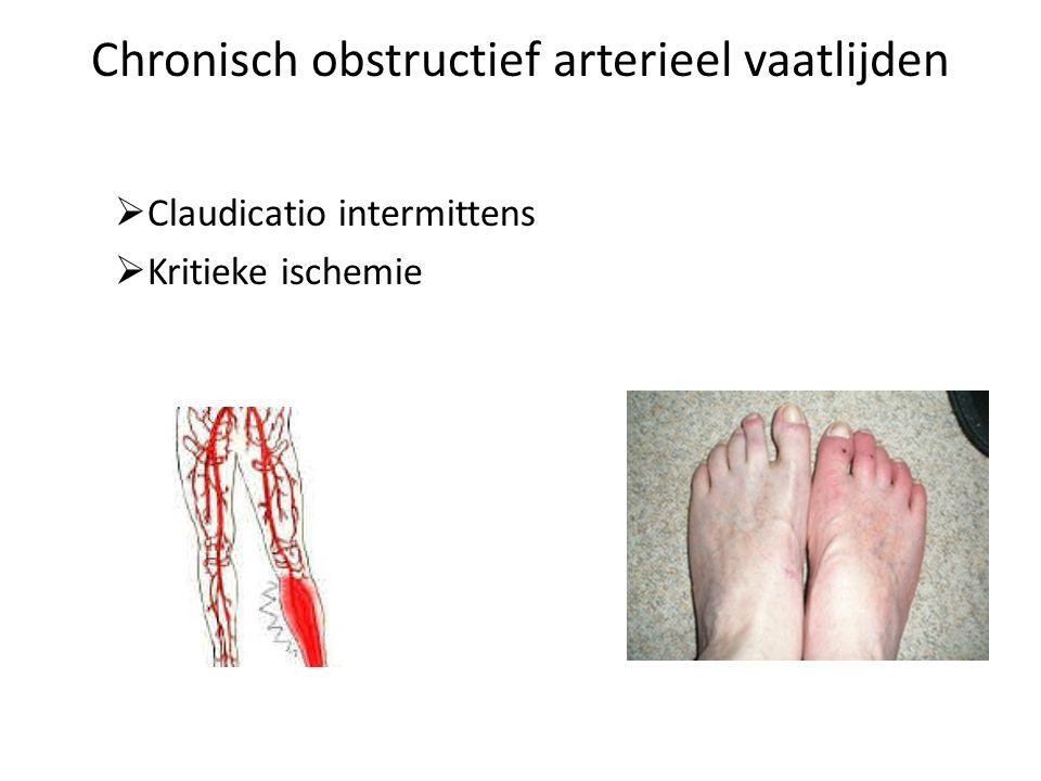 Claudicatio intermittens Pijn, moe,stijf, kramp klachten bij het lopen bij stilstaan verdwijnen de klachten sneller lopen of een heuvel, de klachten komen sneller