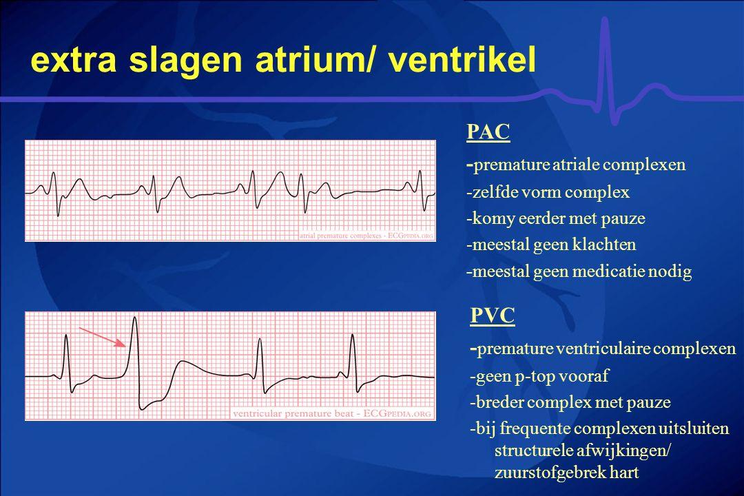 extra slagen atrium/ ventrikel PVC - premature ventriculaire complexen -geen p-top vooraf -breder complex met pauze -bij frequente complexen uitsluite