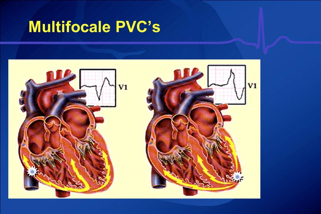 Multifocale PVC's