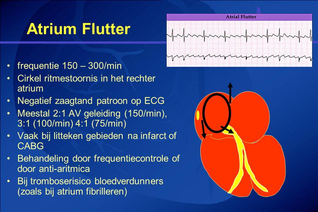 Atrium Flutter frequentie 150 – 300/min Cirkel ritmestoornis in het rechter atrium Negatief zaagtand patroon op ECG Meestal 2:1 AV geleiding (150/min)