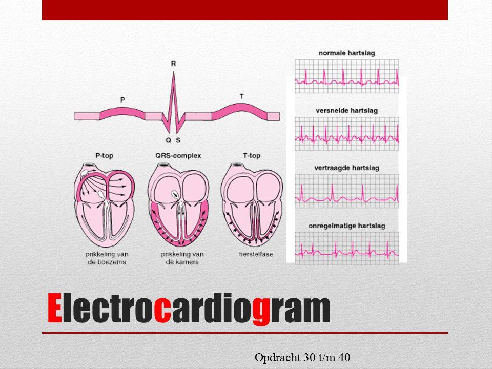 Electrocardiogram Opdracht 30 t/m 40