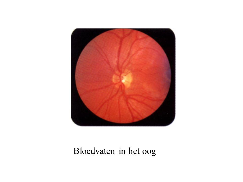 Bloedvaten in het oog