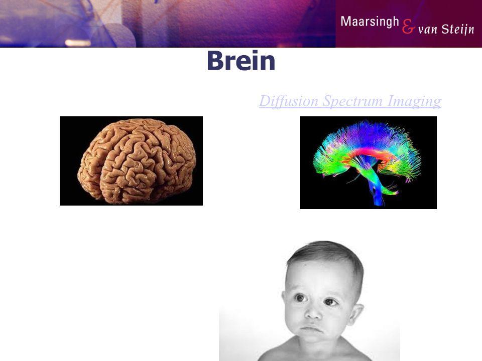 Brein Diffusion Spectrum Imaging