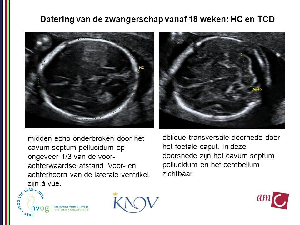 Datering van de zwangerschap vanaf 18 weken: HC en TCD midden echo onderbroken door het cavum septum pellucidum op ongeveer 1/3 van de voor- achterwaa