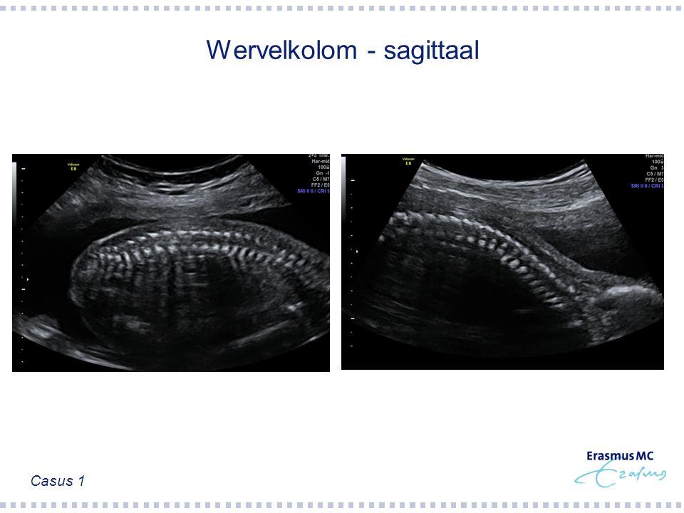 Wervelkolom - sagittaal Casus 1