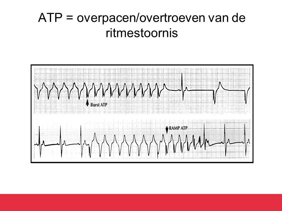 ATP = overpacen/overtroeven van de ritmestoornis