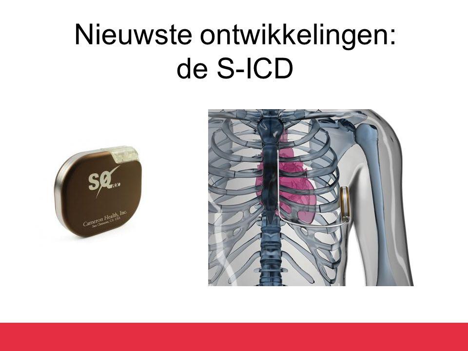 Nieuwste ontwikkelingen: de S-ICD