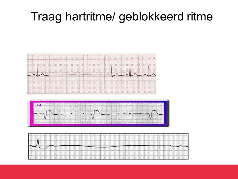 Traag hartritme/ geblokkeerd ritme