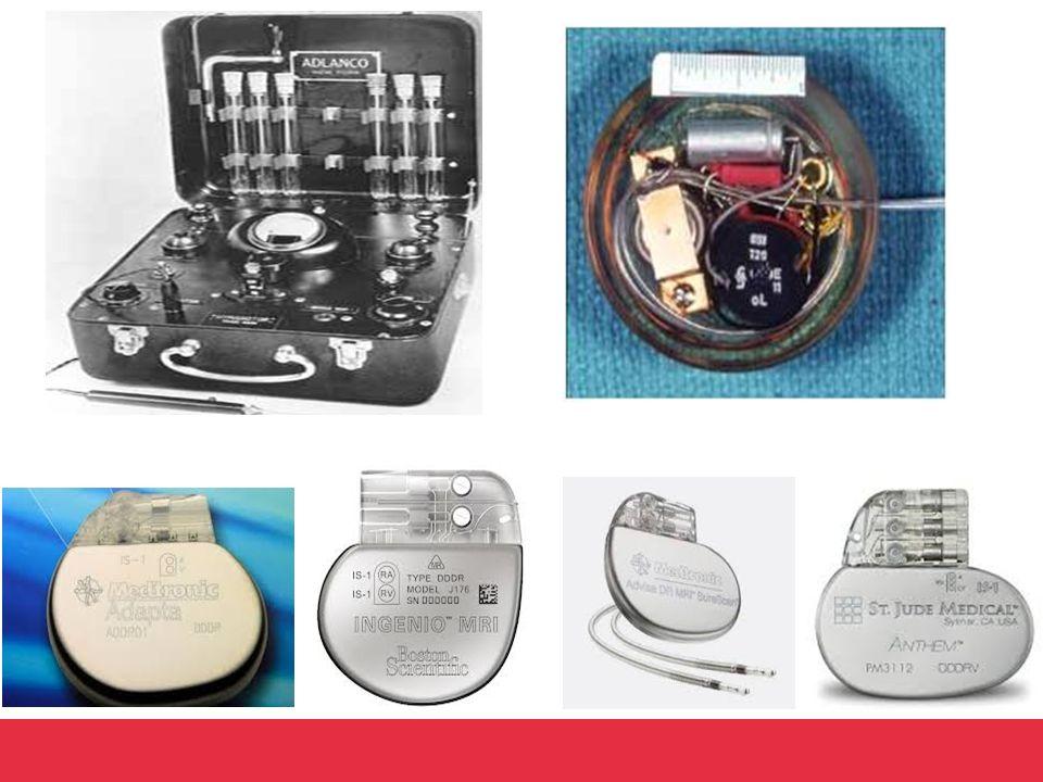 Wat kan een pacemaker.