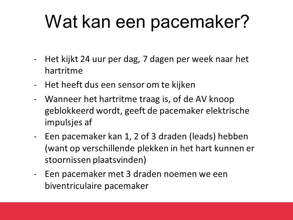 Wat kan een pacemaker? -Het kijkt 24 uur per dag, 7 dagen per week naar het hartritme -Het heeft dus een sensor om te kijken -Wanneer het hartritme tr