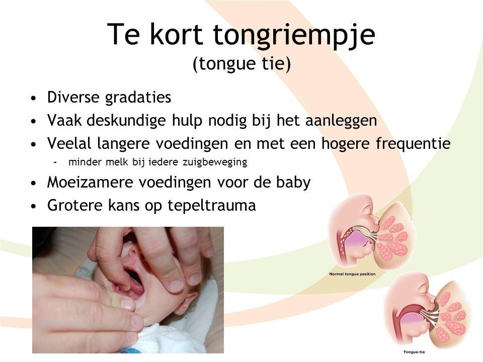 Te kort tongriempje (tongue tie) Diverse gradaties Vaak deskundige hulp nodig bij het aanleggen Veelal langere voedingen en met een hogere frequentie