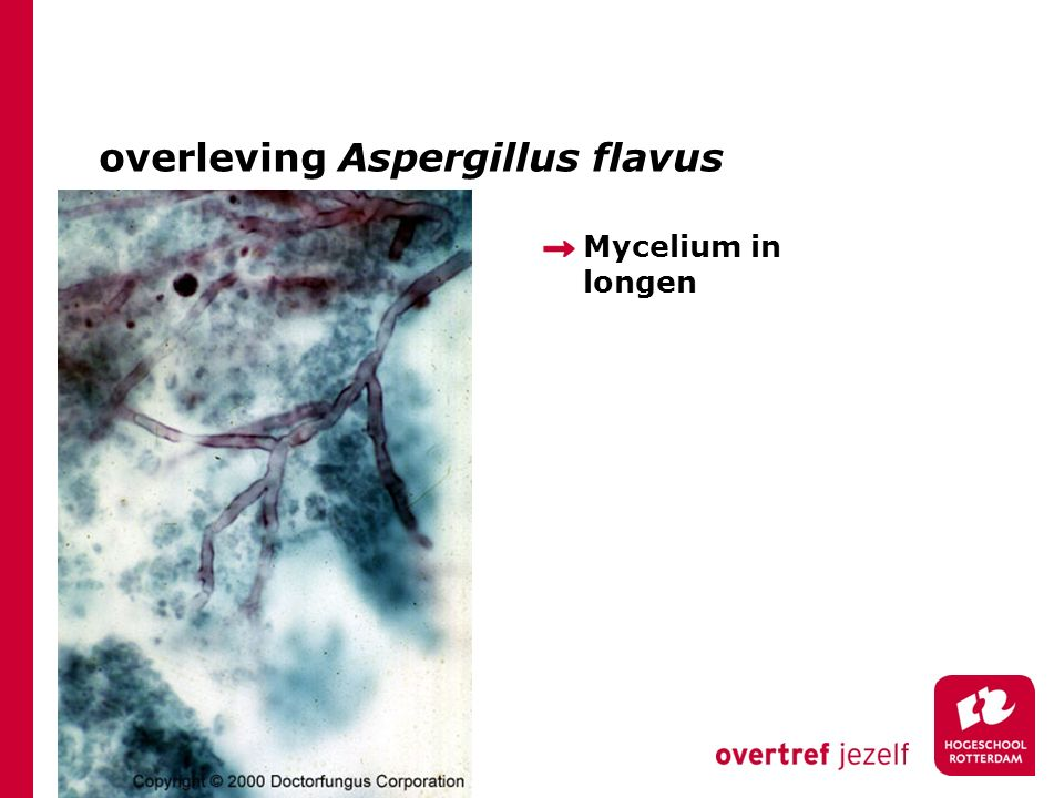 overleving Aspergillus flavus Mycelium in longen