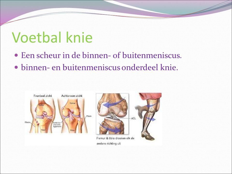 Voetbal knie Een scheur in de binnen- of buitenmeniscus. binnen- en buitenmeniscus onderdeel knie.