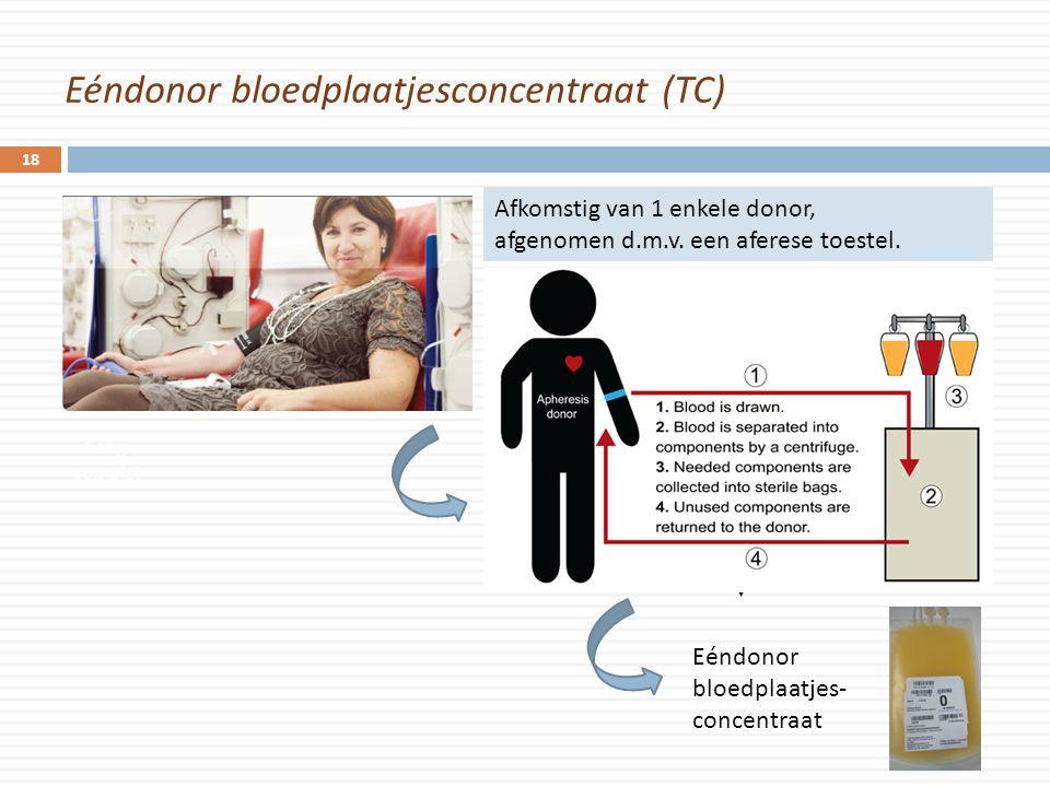 Eéndonor bloedplaatjesconcentraat (TC) 18 Sang complet Eéndonor bloedplaatjes- concentraat Afkomstig van 1 enkele donor, afgenomen d.m.v. een aferese