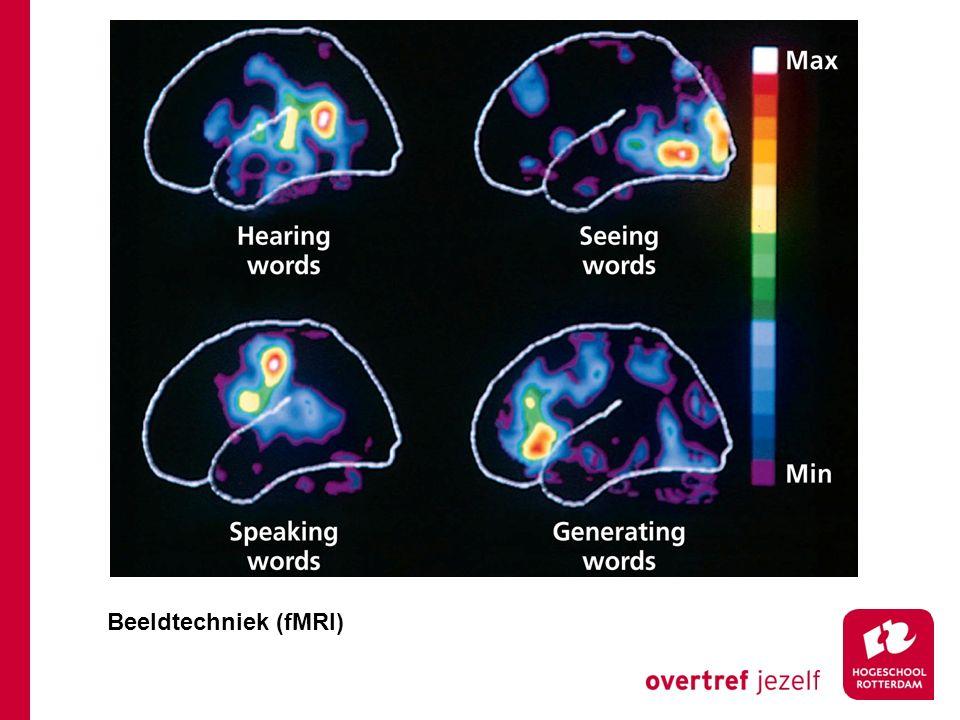 Beeldtechniek (fMRI)