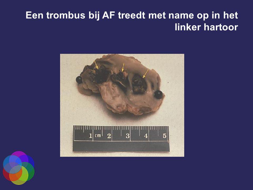 Een trombus bij AF treedt met name op in het linker hartoor