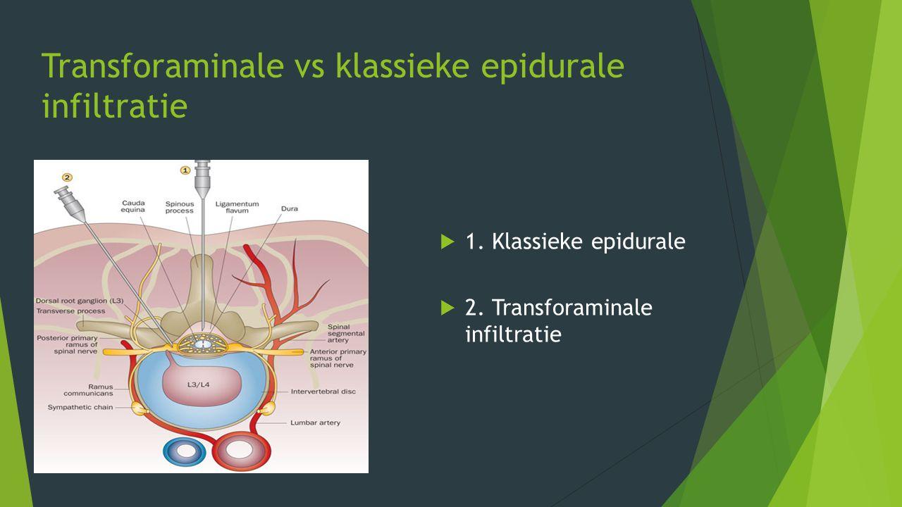 Transforaminale vs klassieke epidurale infiltratie  1. Klassieke epidurale  2. Transforaminale infiltratie