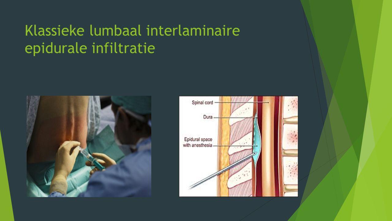 Klassieke lumbaal interlaminaire epidurale infiltratie