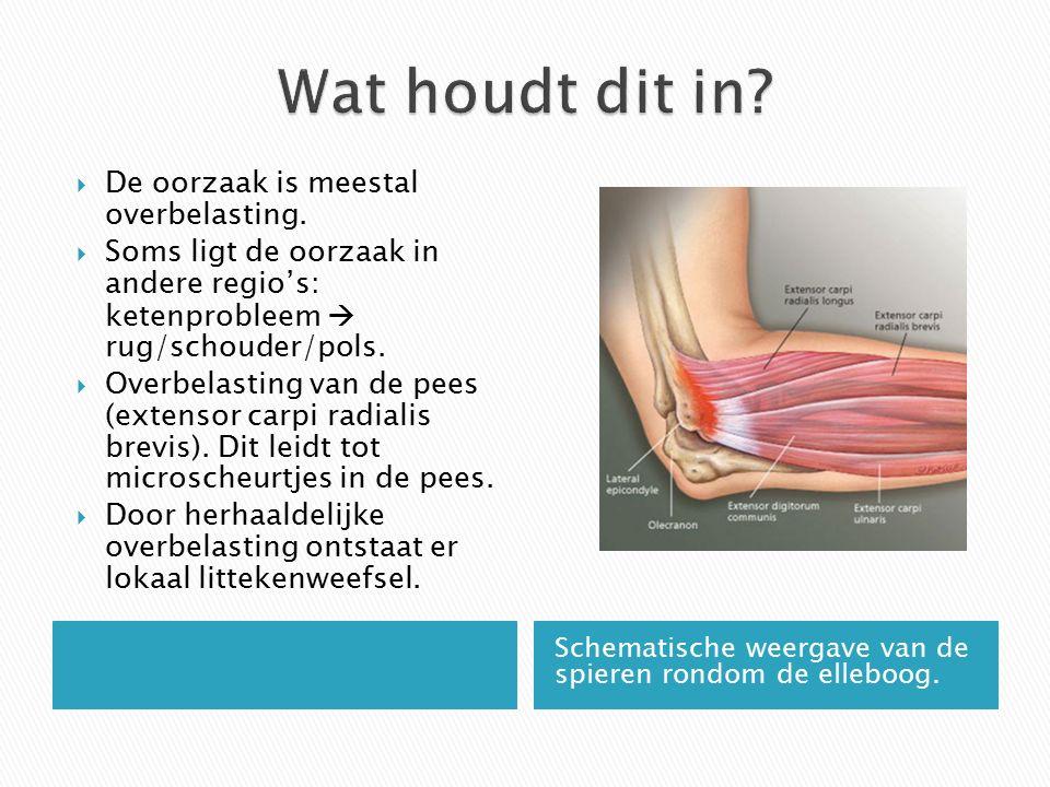 Schematische weergave van de spieren rondom de elleboog.  De oorzaak is meestal overbelasting.  Soms ligt de oorzaak in andere regio's: ketenproblee