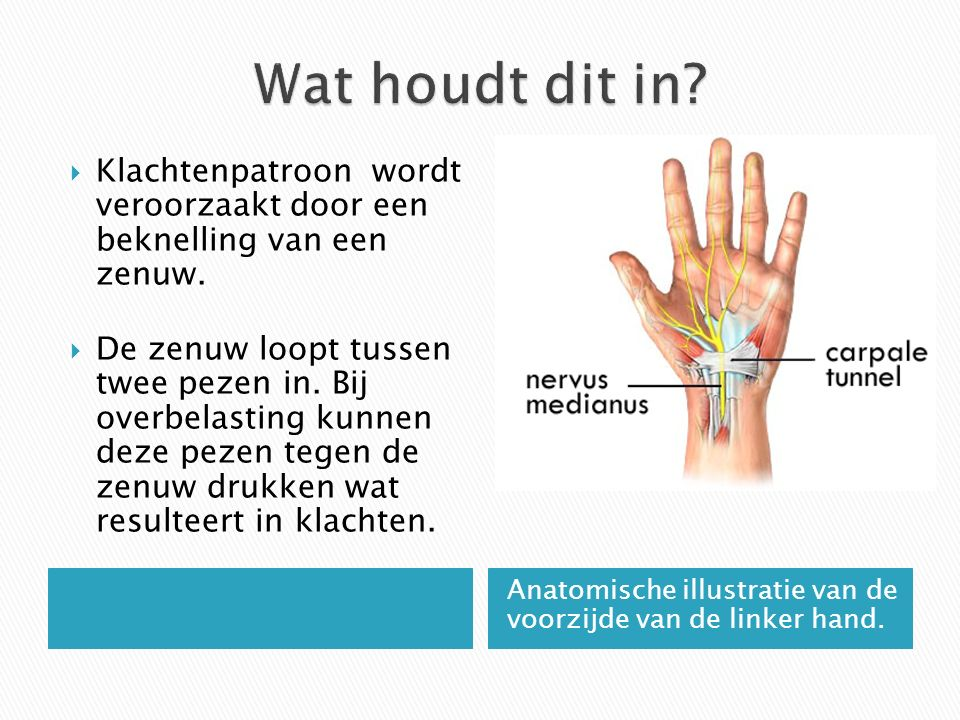Anatomische illustratie van de voorzijde van de linker hand.  Klachtenpatroon wordt veroorzaakt door een beknelling van een zenuw.  De zenuw loopt t