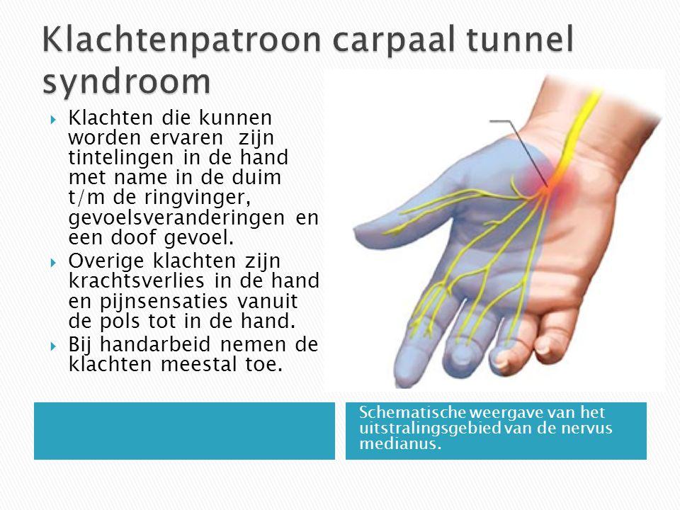 Echografie van de pols: carpaal tunnel syndroom  Wapperen met de hand verlicht de klacht.