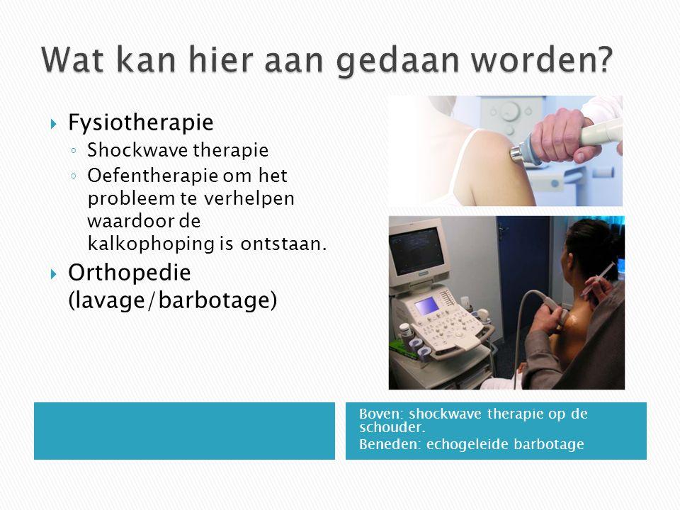 Fysiotherapie: ◦ Bij een veranderde biomechanica (bewegingspatroon) van het schouderblad kan er sprake zijn van een inklemming.