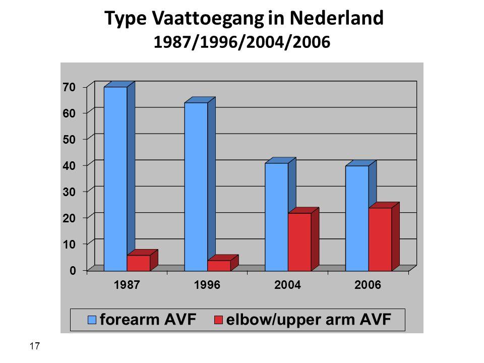 17 Type Vaattoegang in Nederland 1987/1996/2004/2006
