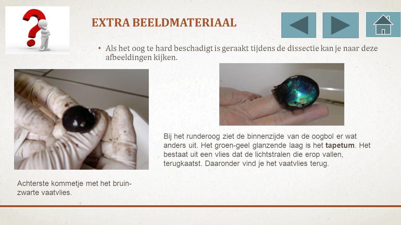 EXTRA BEELDMATERIAAL Als het oog te hard beschadigt is geraakt tijdens de dissectie kan je naar deze afbeeldingen kijken.