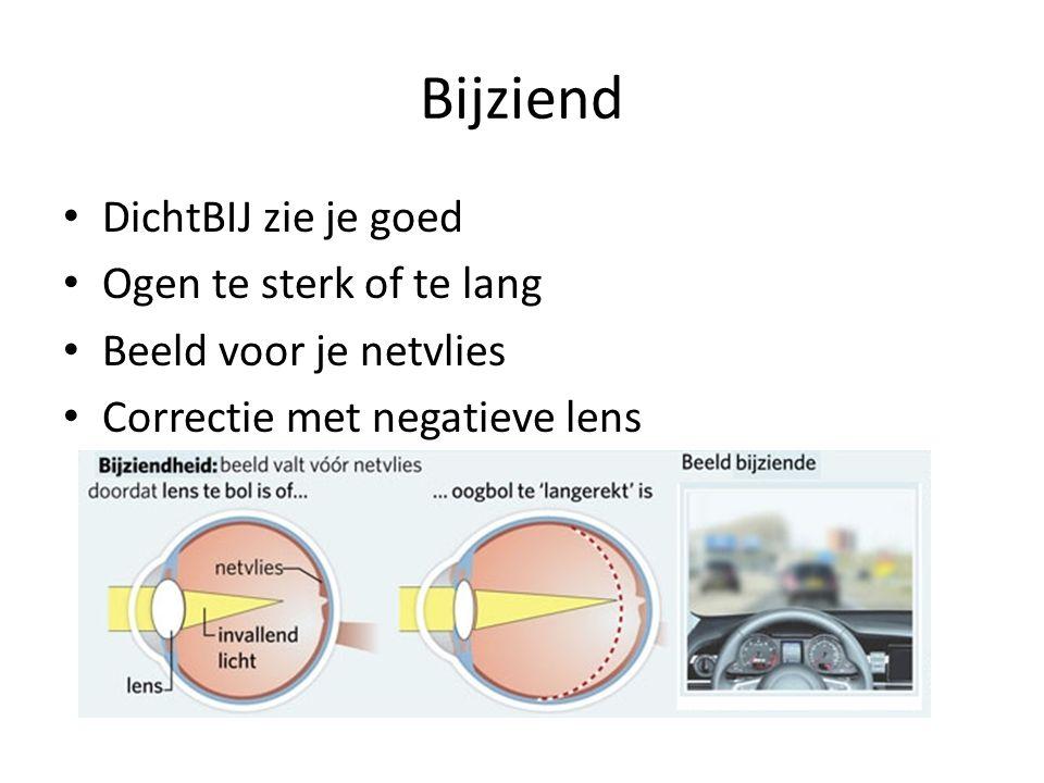 Bijziend DichtBIJ zie je goed Ogen te sterk of te lang Beeld voor je netvlies Correctie met negatieve lens