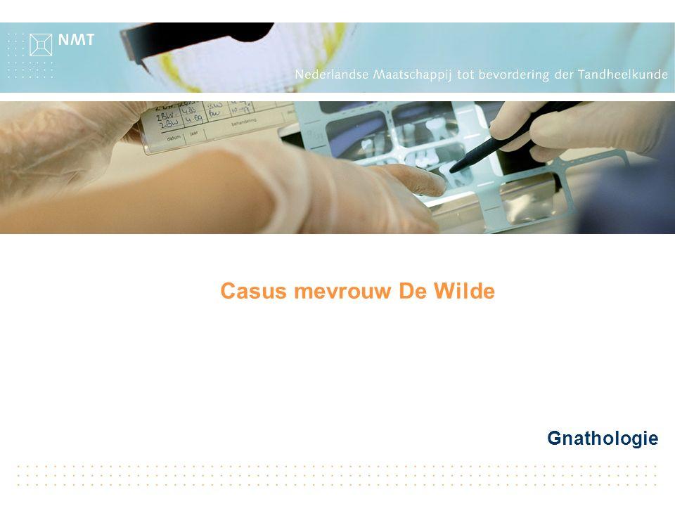Gnathologie Casus mevrouw De Wilde