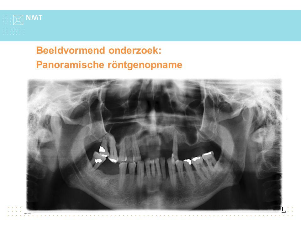 Beeldvormend onderzoek: Panoramische röntgenopname Bevindingen: Dentinecariës in de 14 en de 46 Terug naar overzicht gegevens