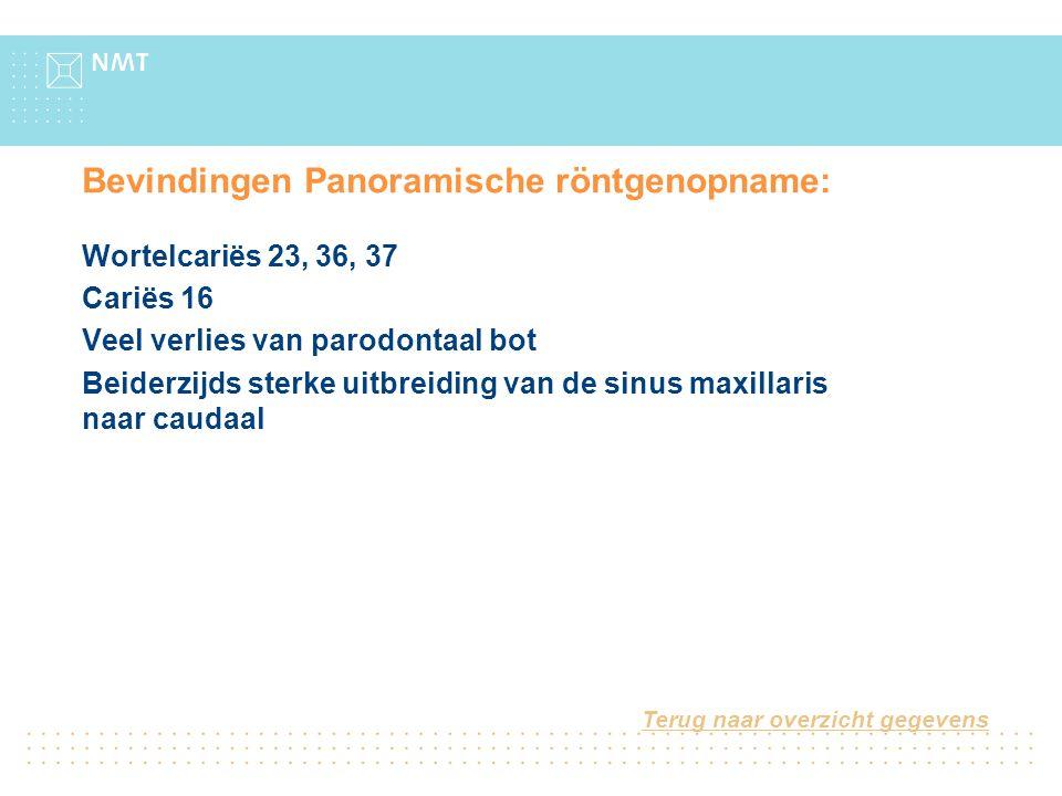 Bevindingen Panoramische röntgenopname: Wortelcariës 23, 36, 37 Cariës 16 Veel verlies van parodontaal bot Beiderzijds sterke uitbreiding van de sinus maxillaris naar caudaal Terug naar overzicht gegevens
