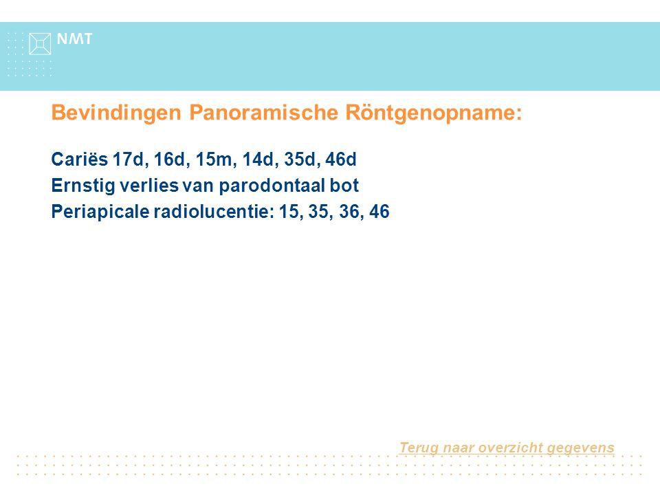 Bevindingen Panoramische Röntgenopname: Cariës 17d, 16d, 15m, 14d, 35d, 46d Ernstig verlies van parodontaal bot Periapicale radiolucentie: 15, 35, 36,
