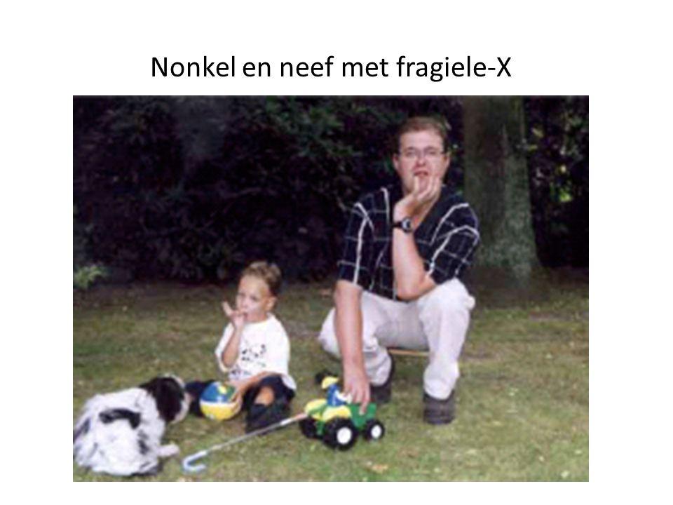 Nonkel en neef met fragiele-X