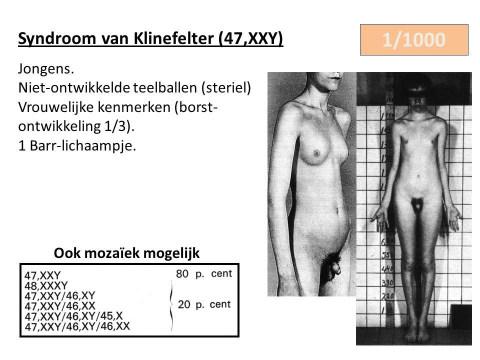 Syndroom van Klinefelter (47,XXY) Jongens. Niet-ontwikkelde teelballen (steriel) Vrouwelijke kenmerken (borst- ontwikkeling 1/3). 1 Barr-lichaampje. 1