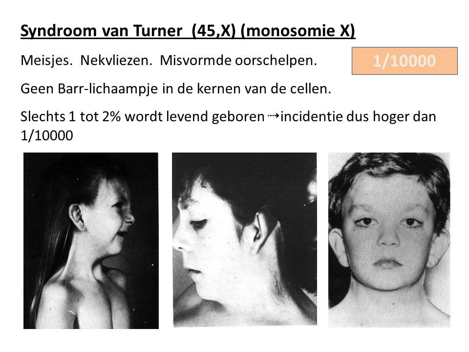 Syndroom van Turner (45,X) (monosomie X) Meisjes. Nekvliezen. Misvormde oorschelpen. Geen Barr-lichaampje in de kernen van de cellen. Slechts 1 tot 2%
