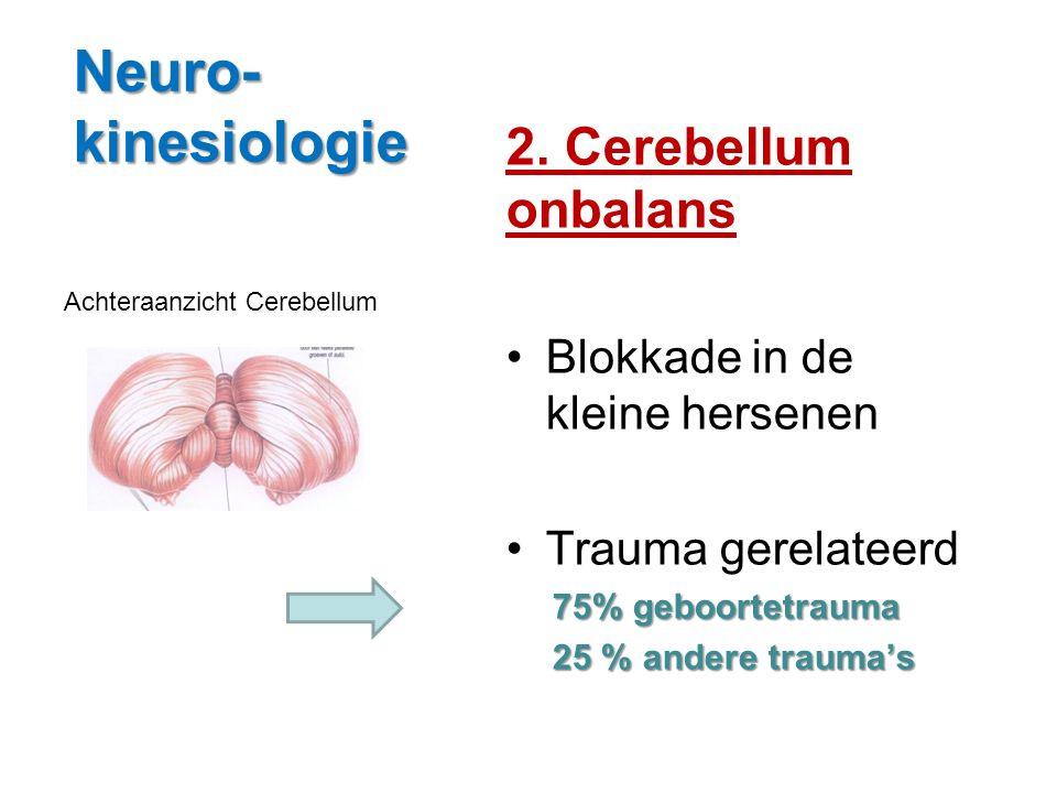 Neuro- kinesiologie 2. Cerebellum onbalans Blokkade in de kleine hersenen Trauma gerelateerd 75% geboortetrauma 25 % andere trauma's Achteraanzicht Ce