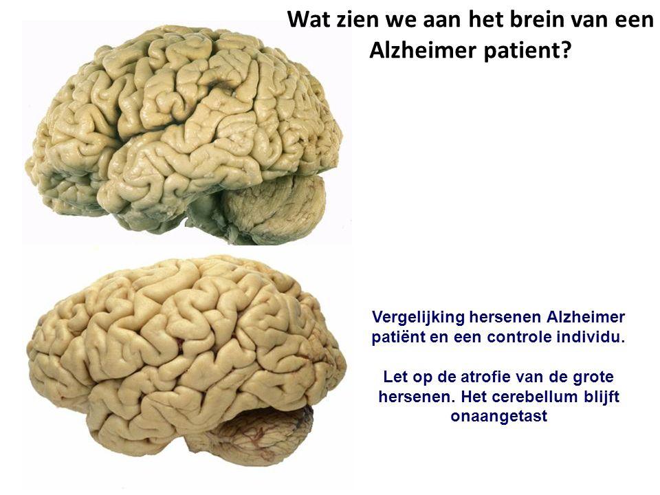 Vergelijking hersenen Alzheimer patiënt en een controle individu.